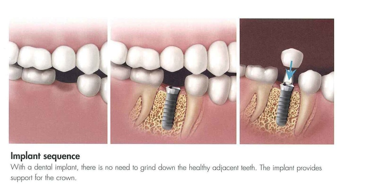Dental Implants Manchester NH